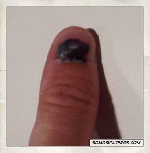 dedo con herida